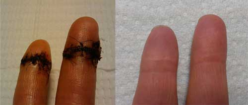 Cut fingers healed with squalane oil