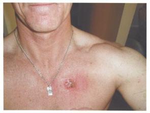 Body As Doctor Skin Cancer Breakthrough