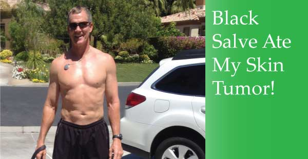 Black Salve Eliminated My Skin Tumor